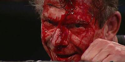 Vince-mcmahon-blood