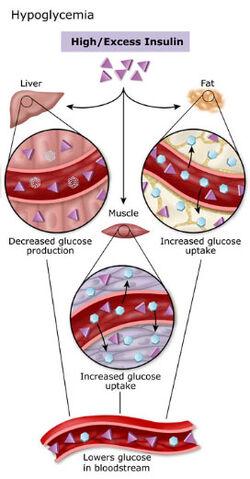 File:Hypoglycemia.jpg