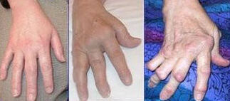 325px-Arthrite rhumatoide