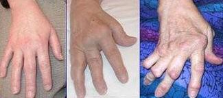 File:325px-Arthrite rhumatoide.jpg