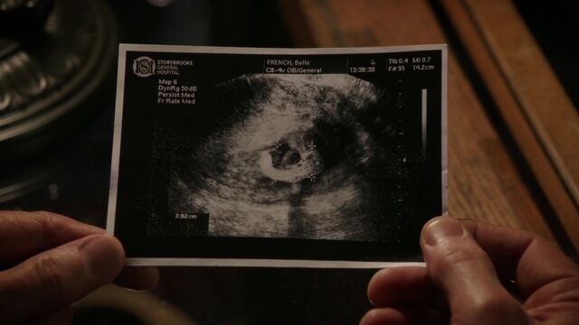 File:Once Upon a Time - 6x08 - I'll Be Your Mirror - Sonogram.jpg