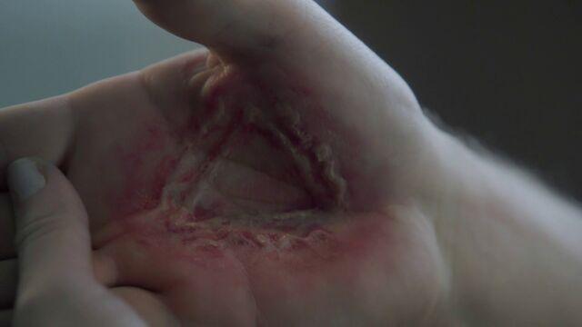 File:Handburn.jpg