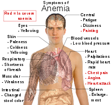 File:Anemia.png