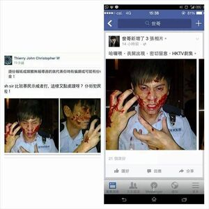 Occupycentral wound&hktv