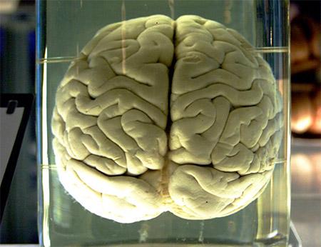 File:Brains!.jpg