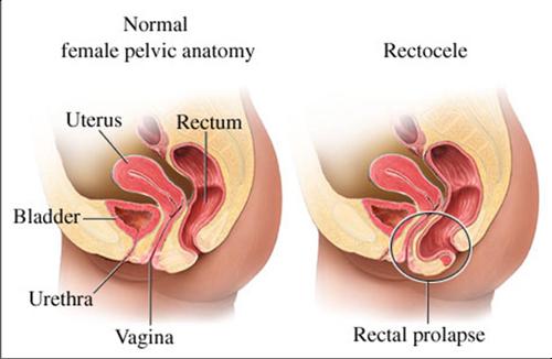File:Rectocele Anatomy.jpg