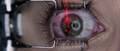 Olivia's eye again gets lasered.png