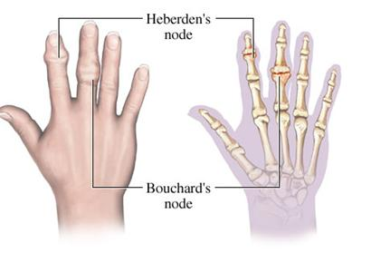 File:Arthritis hand nodes.jpg