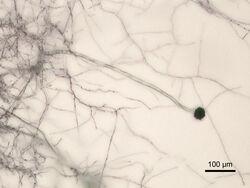 Aspergillus niger Micrograph