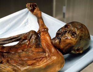 Ötzi the Iceman on a sheet covered stainless steel autopsy table