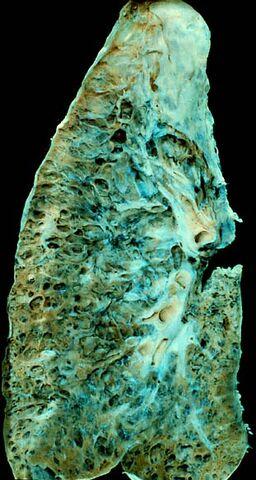 File:End-stage interstitial lung disease.jpg