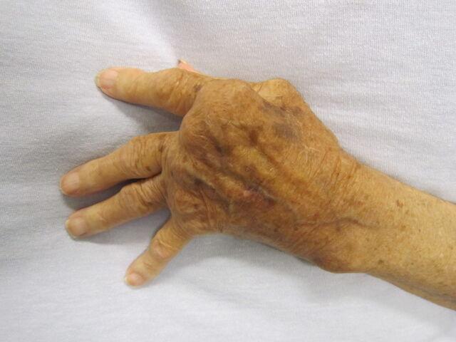 File:Rheumatoid arthritis.jpg
