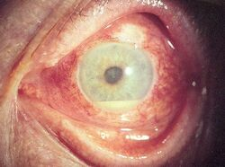 An eye affected by uveitis