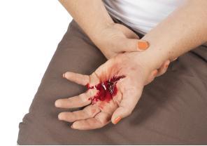 File:Bleeding.jpg