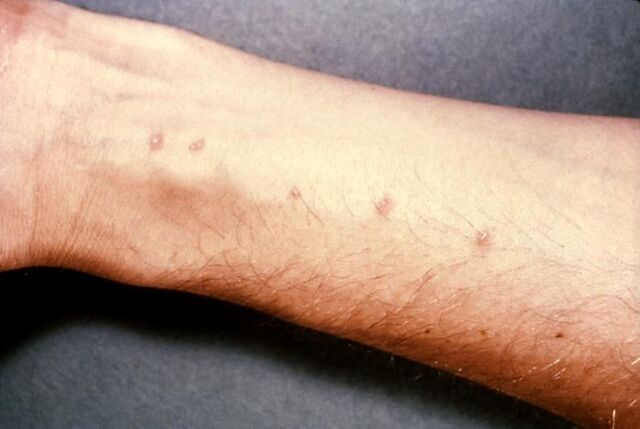 File:Schistosomiasis itch.jpg