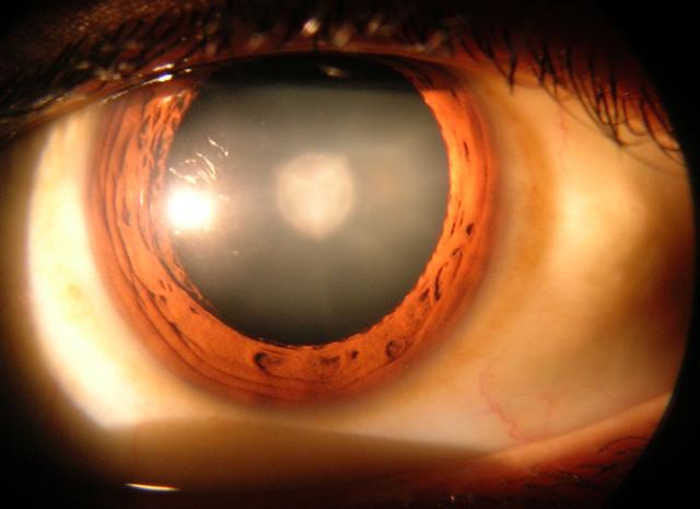 File:Cataract in human eye.png