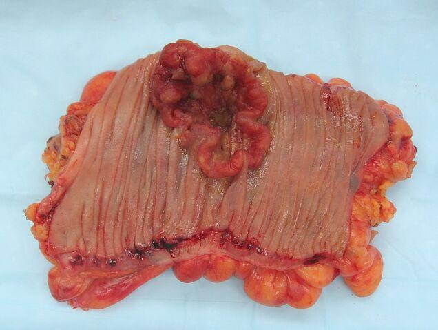 File:Colon cancer 2.jpg