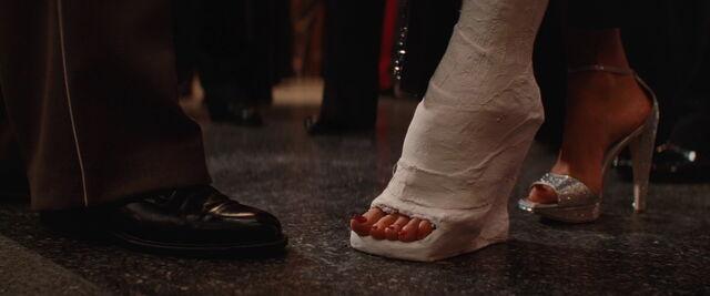 File:Close-up on Bridget's foot in cast.jpg