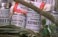 File:Dharma Kidney Beans.JPG
