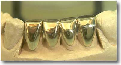 File:Source image from saipan.com,images.google.com, gold teeth lower, page 5, result 10