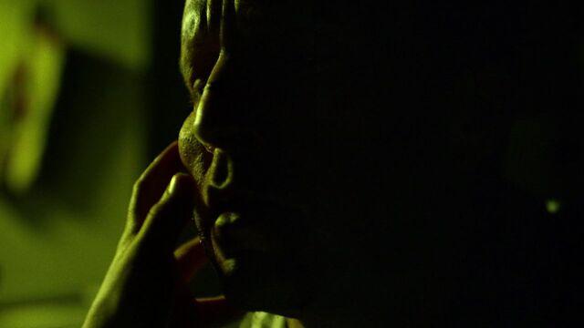 File:Jack-Murdock-bruise-face.jpg