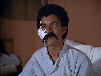 Robelo with mustache-post op