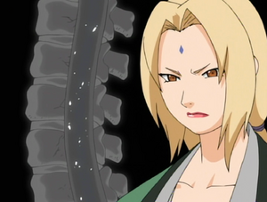 Tsunade Explaining Lee's Injury