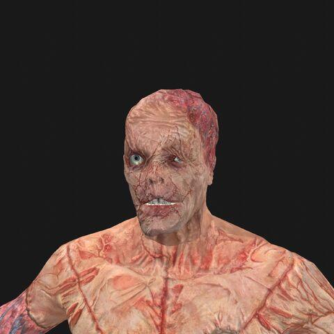 File:Patient14 face.jpeg