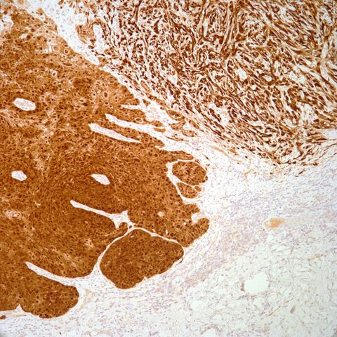 File:P16.squamous cell carcinoma.1.jpg
