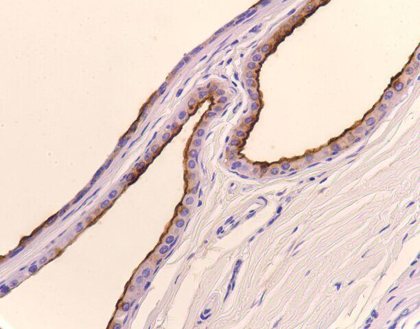 File:EMA.breast.apocrine metaplasia.400x.jpg