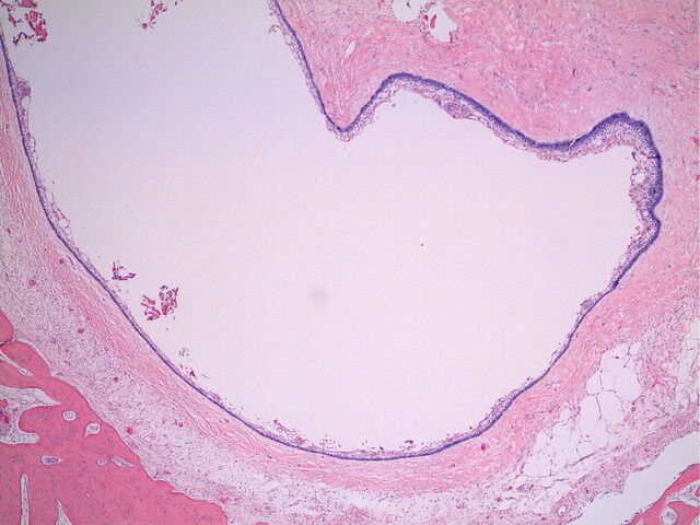 File:Ameloblastoma intraosseous follicular.jpg