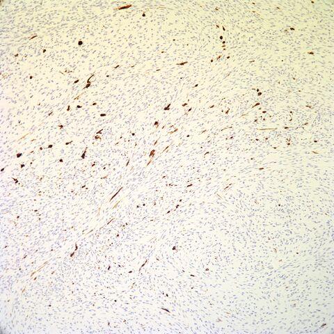 File:Tyrosinase.pigmented neurofibroma.2.jpg