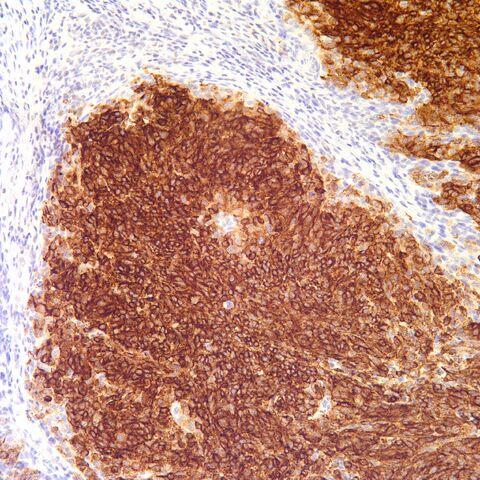 File:HMB-45.melanoma.1.jpg