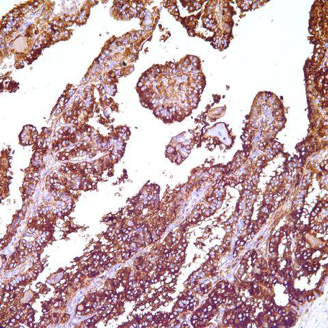File:Thyroglobulin.jpg