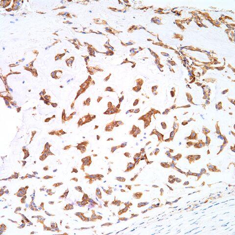 File:AE1.3.myoepithelioma.parachordoma.1.jpg