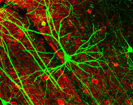 File:GFPneuron.png