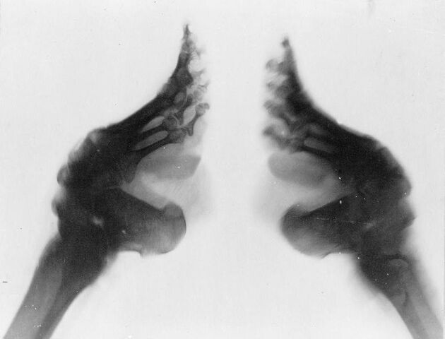File:Bound feet (X-ray).jpg