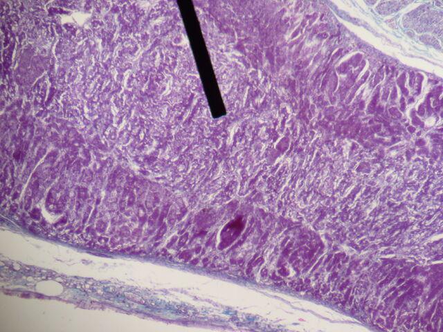 File:Adrenal gland (medulla).JPG