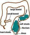 Bowel-overflow-sheme2.jpg