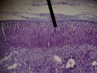 Adrenal gland (zona glomerulosa)