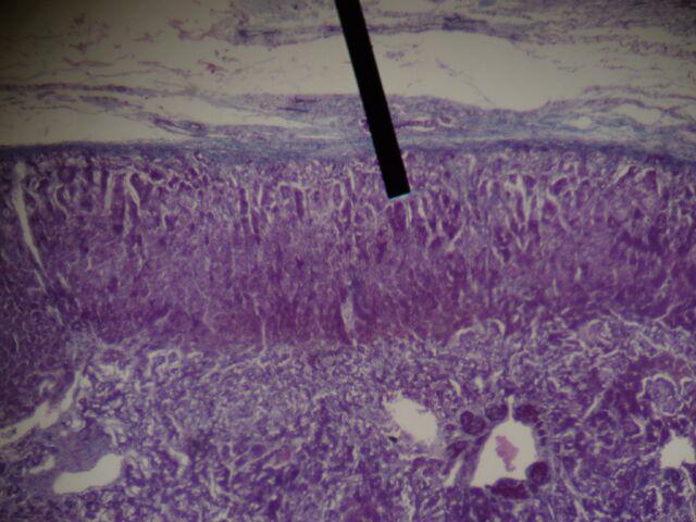File:Adrenal gland (zona glomerulosa).JPG