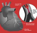 Myocardial infarctions