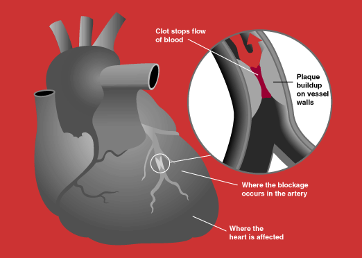 File:Heart attack diagram.png