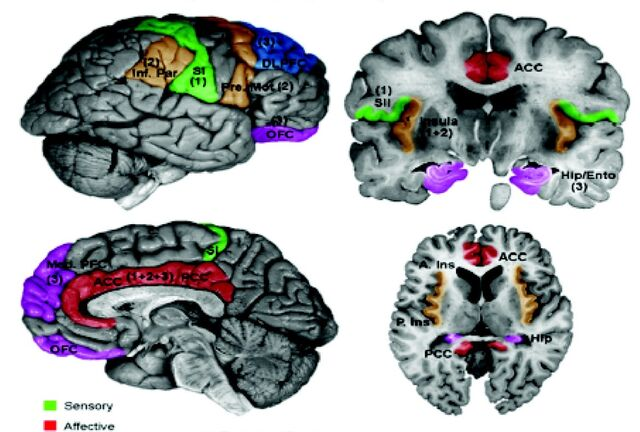 File:Schematic of cortical areas involved with pain processing and fMRI cropped.jpg