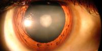 Lens (eye)