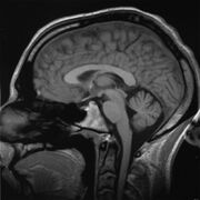 Brain chrischan