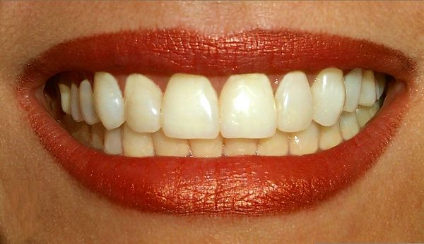 File:Teeth.jpg