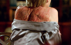 4x11 - Elizabeth North Scars