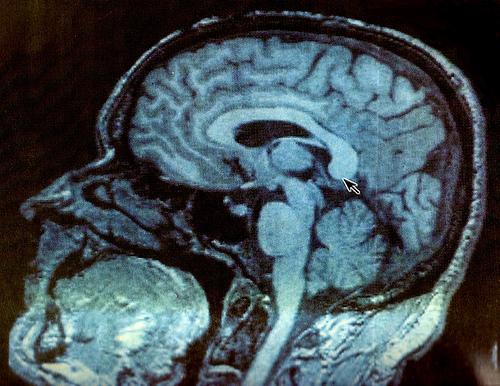 File:Neuroanatomía.jpg