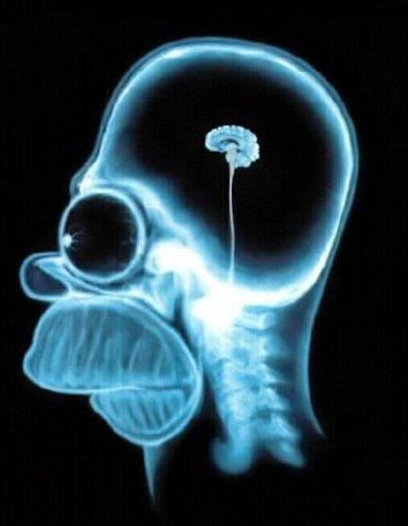 File:Homers brain.jpg